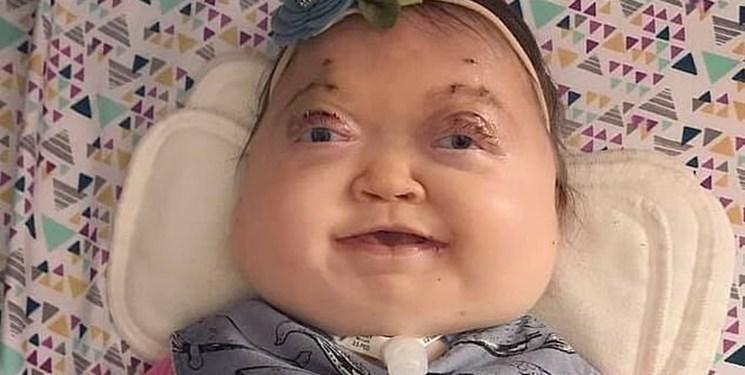 ناهنجاری ژنتیکی فوق العاده نادر یک کودک