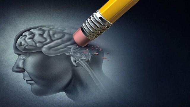 فراموشی و 6 دلیل بی ارتباط به آلزایمر!